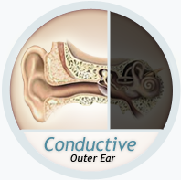condusctive loss outer ear