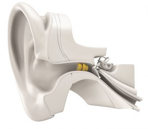 lyric3 inside ear diagram